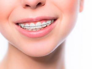 De ce este bine sa folosim aparate dentare?