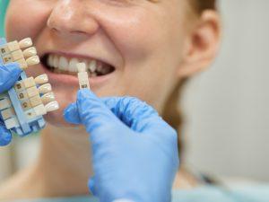 Cat de importanta este vizita regulata la medicul stomatolog?